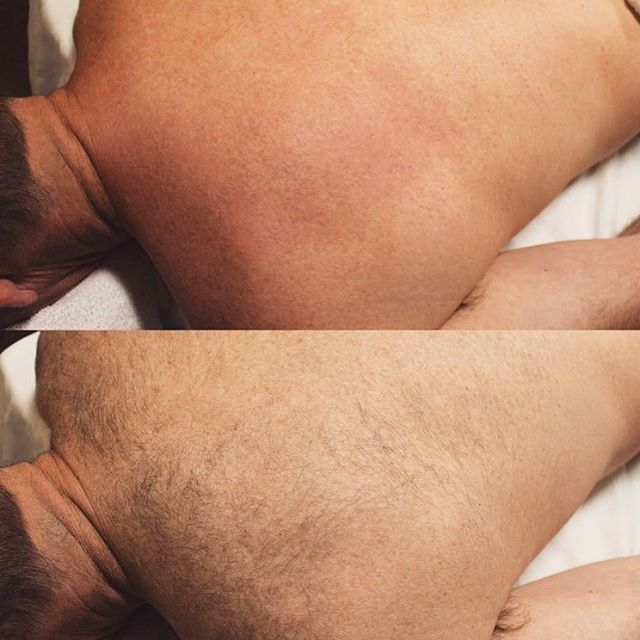 Full back sugaring. This service can last up to 4-6 weeks and usually takes about 30-45 minutes, depending on the density and thickness of the hairs. #vacationready #sugaring