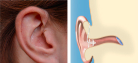 Hearing Aids Abbotsford - Open-Ear/Open-Fit Technology
