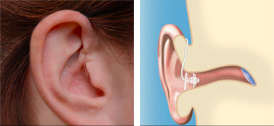 Hearing Aids Abbotsford - Receiver-in-Canal/Receiver-in-the-Ear (RIC/RITE) Technology