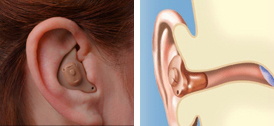 Hearing Aids Abbotsford - In-the-Ear (ITE) Technology