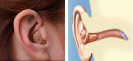 Hearing Aids Abbotsford - In-the-Canal (ITC) Technology