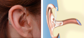 Hearing Aids Abbotsford - Behind-the-Ear (BTE) Technology
