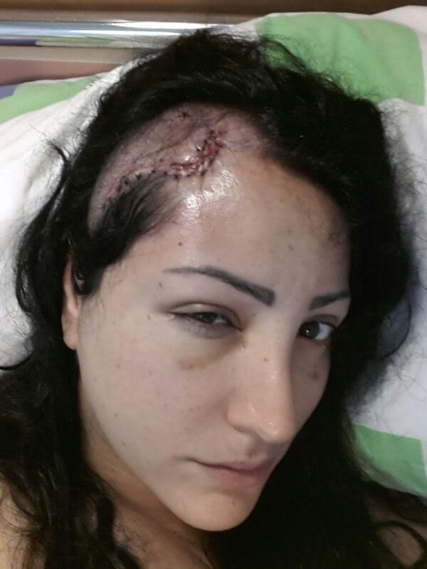 """The painful pictures are few days after the surgery I had to go through after the Israeli army/police shot me in my head."""