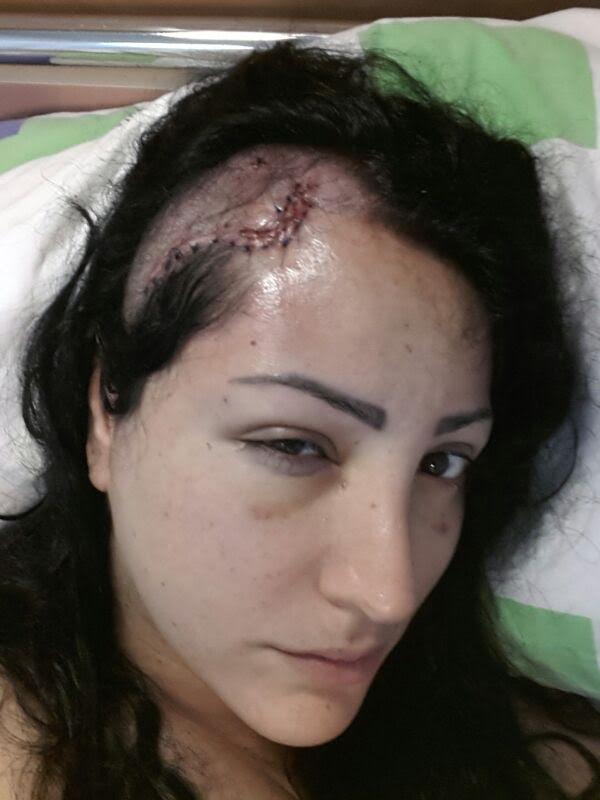 buthaina scar 1.jpg