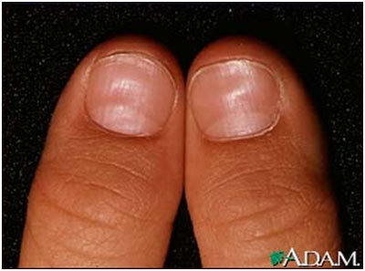 Oh, My Darn Nails: 6 Things Your Nails Are Trying to Tell ... B12 Deficiency Nails
