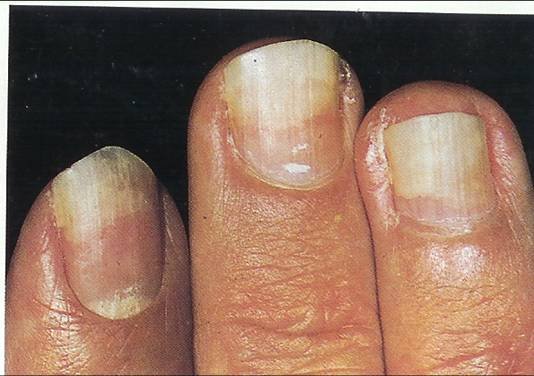5 If The Nail Beds Are Yellow Or There Is Poor No Growth It May Mean That You Deficient In Vitamin E
