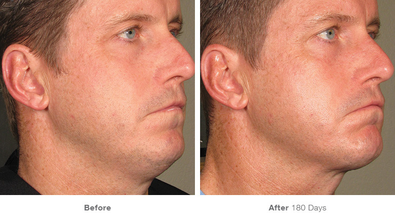 before_after_ultherapy_results_full-face16.jpg