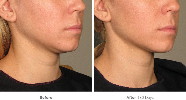 before_after_ultherapy_results_under-chin36.jpg