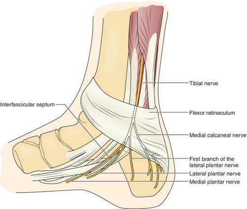 Foot pain-tarsal tunnel syndrome-heel numbness