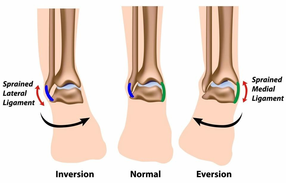 Types of Ankle Sprains, Symptoms and Treatments
