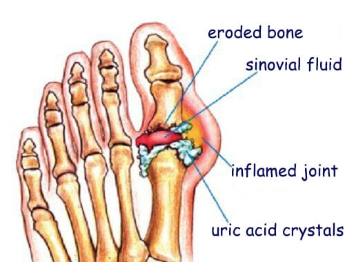 What is Gout, Treatments, and Management.  Acute Gouty Attack. Pain in Big toe