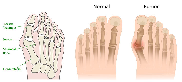 bunion, bunion surgery, bunion pain, foot pain, orthotics