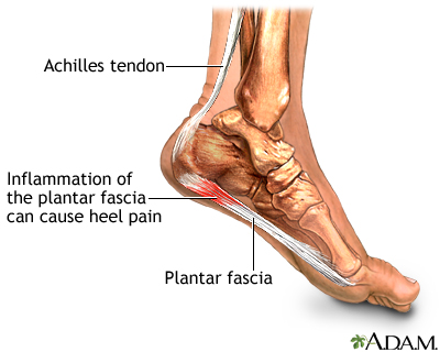 Plantar Fasciitis, Heel pain, Foot Pain.    We treat foot and ankle ailments in Phoenix, Scottsdale, Paradise Valley, Peoria, Tempe, Glendale. To make an appointment with your Foot & Ankle Specialists call 480-253-9996 or visit us at www.phxfootankle.com