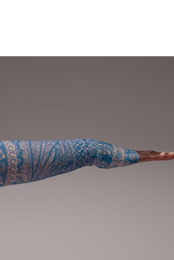 Photo courtesy LympheDIVAs: Garment Featured: Blue Bandit Sleeve