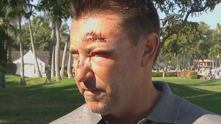 The morning after the night before for Robert Allenby
