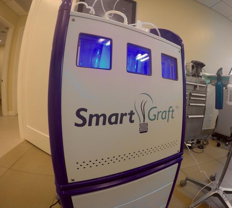 SmartGraft - FUE