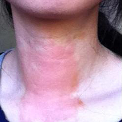 DERMATITIS | BEFORE JUNE 2012 | SKIN RASH
