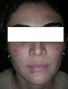 ACNE & SKIN BLEMISH | BEFORE