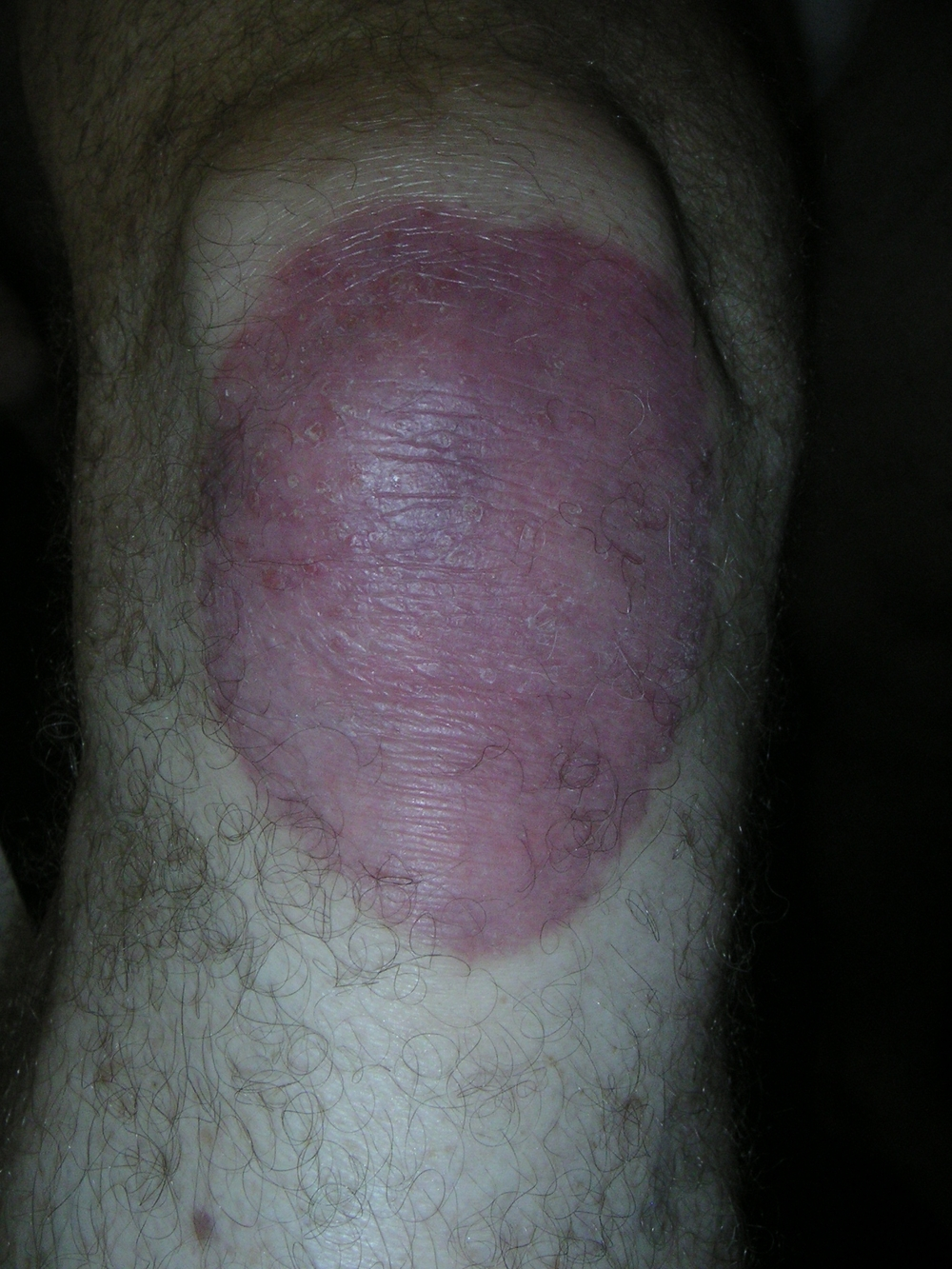 PSORIASIS RIGHT KNEE | BEFORE