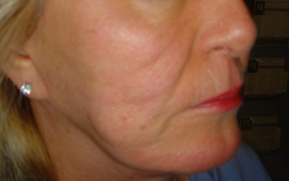 ACUPUNCTURE FACE LIFT - AFTER