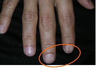 NAIL DISCOLORATION DURING CHEMOTHERAPY | BEFORE