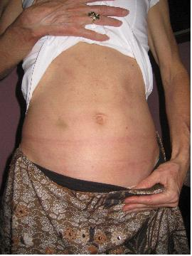 RASH ABDOMEN | AFTER