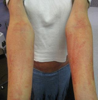 RASH ARMS | BEFORE