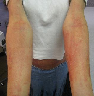RASH ARMS | BEFORE