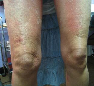 RASH LEGS | BEFORE
