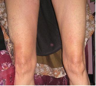 RASH LEGS | AFTER