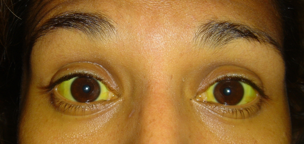 YELLOW EYES | JAUNDICE - BEFORE