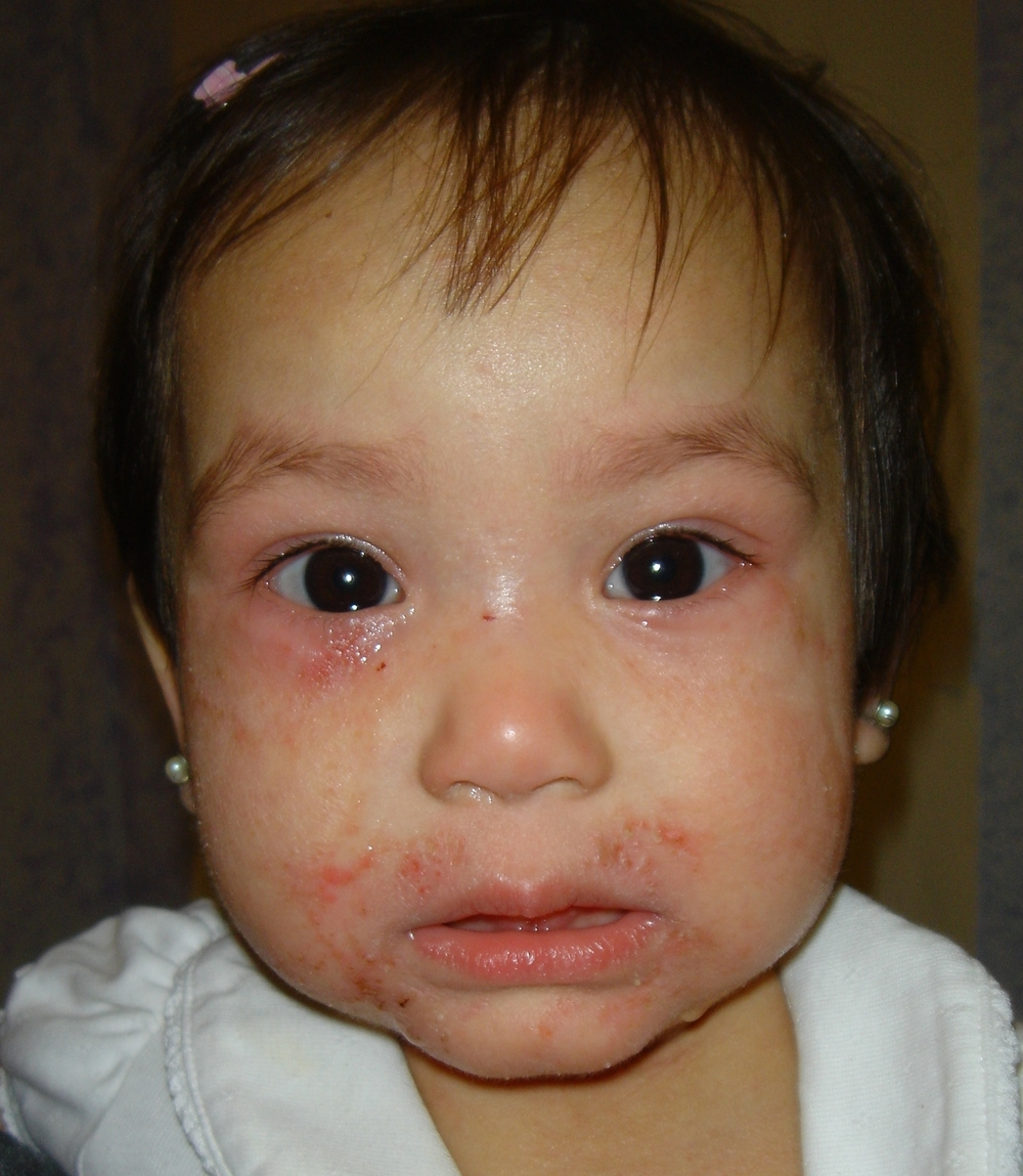 ECZEMA PEDIATRIC SKIN CONDITION | BEFORE