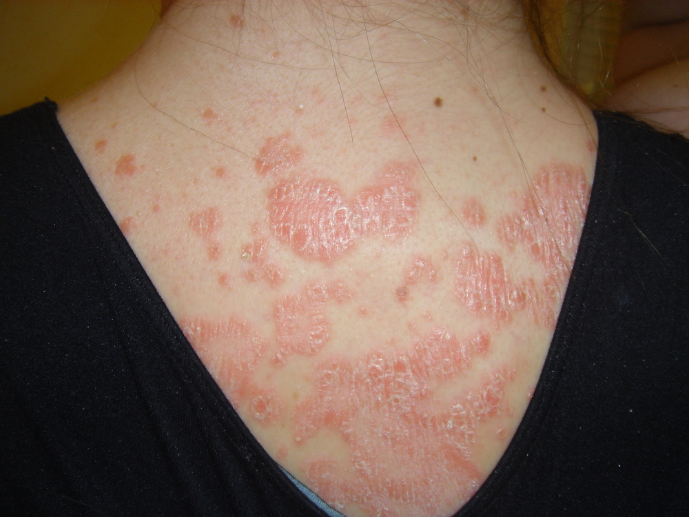 PSORIASIS | BEFORE PHOTO of patient suffering from Psoriasis, an Auto-Immune disease – inflamed, irritated, itchy, scaly, dry skin condition – photos are not touched up
