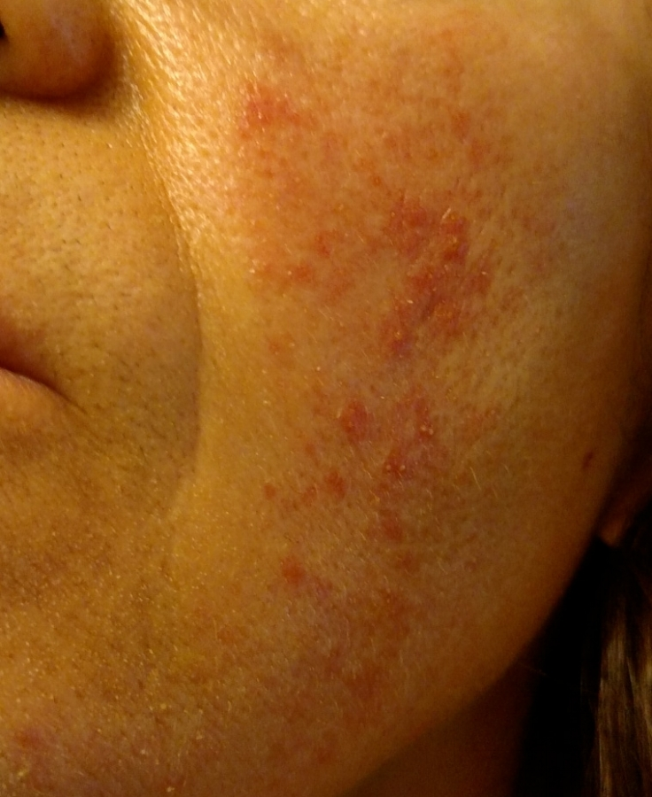 skin-rash-irritation-redness