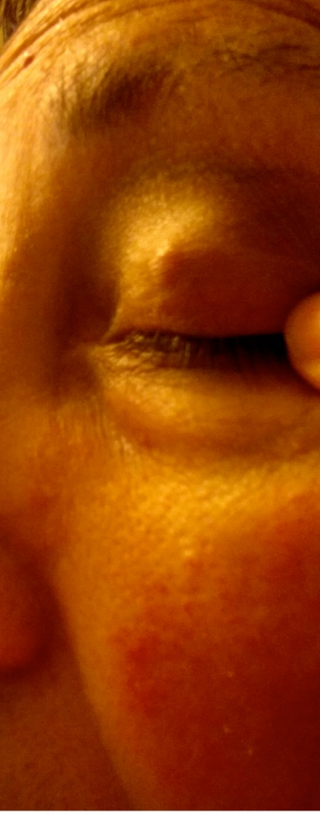 eye-stye-growth-blister