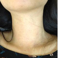 AFTER | THYROID NODULES