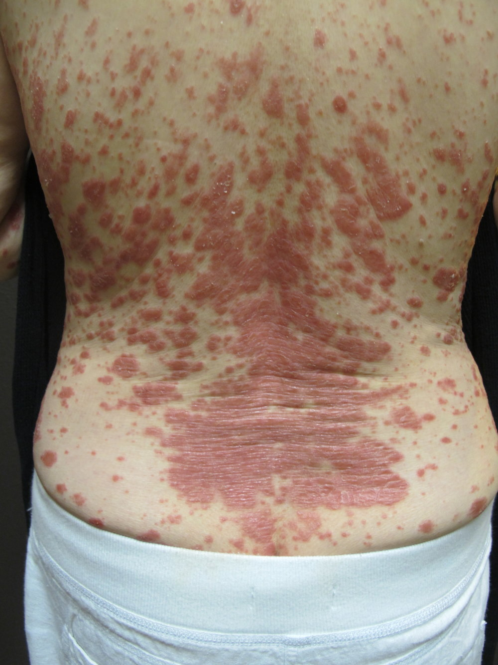 DERMATITIS | SKIN RASH | BEFORE