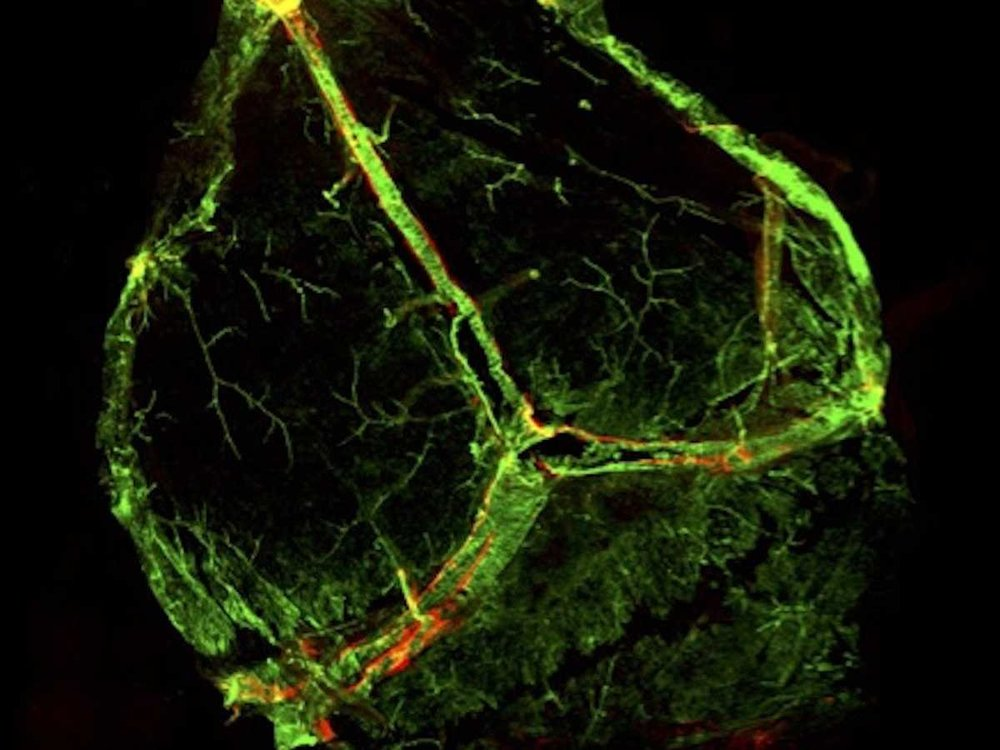 Newly discovered brain lymphatic vessels are shown in red, almost invisible beside the blood vessels (in green). Image courtesy of University of Virginia.