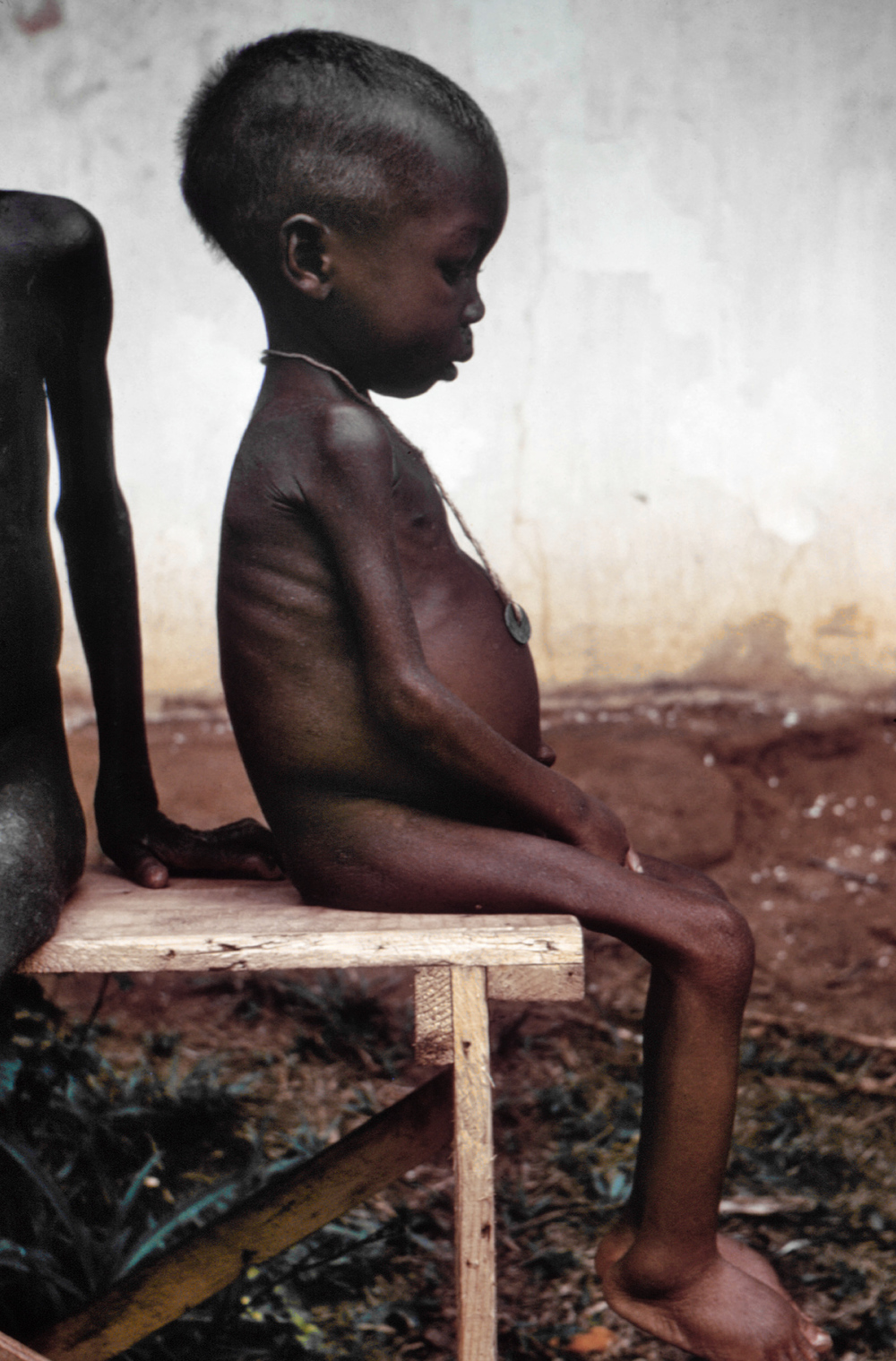 Image: Public Domain Image from https://en.wikipedia.org/wiki/Starvation#/media/File:Starved_girl.jpg