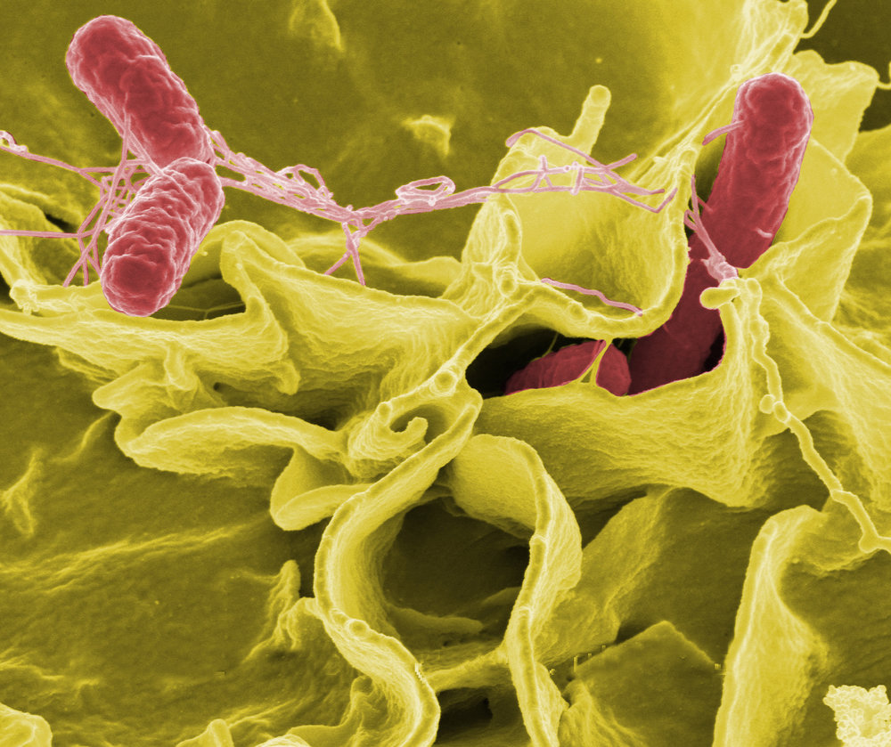 ELECTRON MICROGRAPH SHOWING SALMONELLA TYPHIMURIUM, A POTENTIALLY DANGEROUS PATHOGEN TO ASTRONAUTS IN SPACE. (CREDIT: ROCKY MOUNTAIN LABORATORIES, NIAID, NIH)