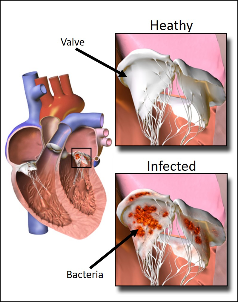 Figure 1: When bacteria enter the bloodstream, it can get caught in the heart valve. This infection results in Infective Endocarditis (IE) and hinders cardiac function. Image credit:  BruceBlaus . Licensed under  CC BY-SA 4.0 .