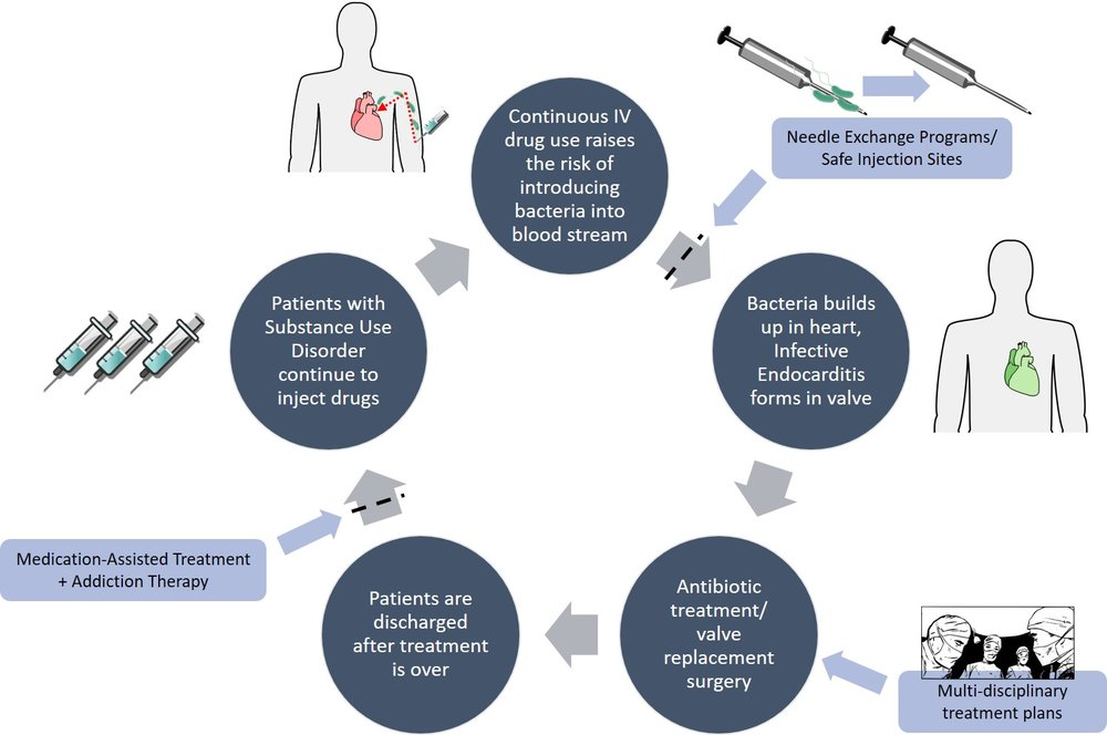 Figure 3: IV drug users that acquire IE are at risk of undergoing a cycle (dark circles) of infection and treatment. There are several ways in which this cycle is being addressed (light boxes). NEPs/SISs and MAT are programs that aim to break the cycle  (dotted lines). Improved treatment plans via multidisciplinary practices are working to provide better, individualized care for IE patients. Image compiled by Shuin (Sue) Park.