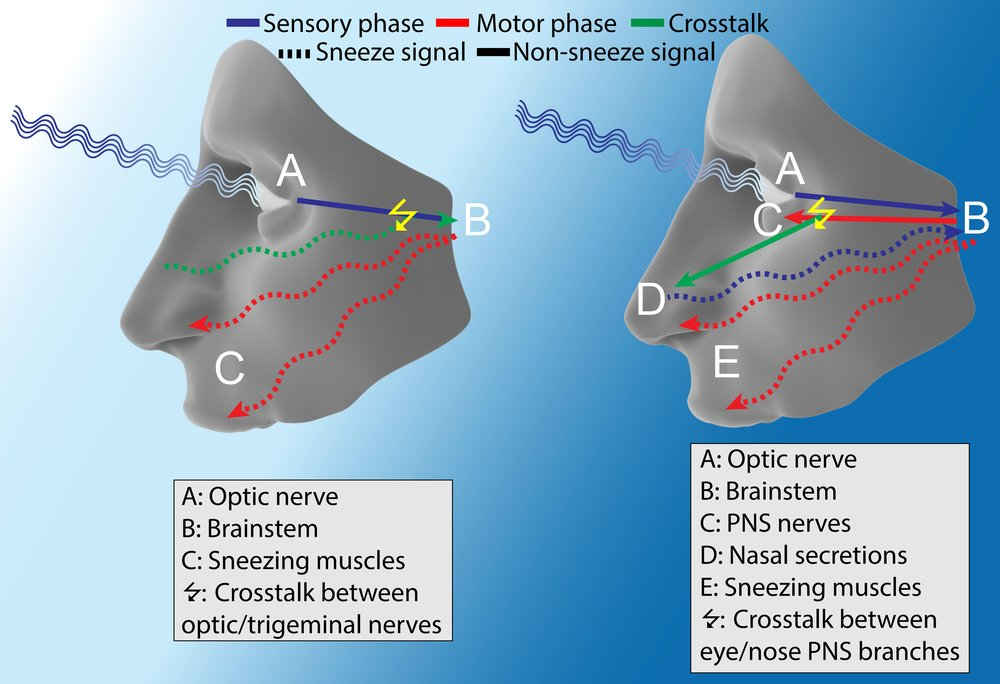 "Figure 2: Potential mechanisms of ACHOO :  Theory 1: The optic nerve (A) senses the sudden bright light and unintentionally activates the nearby trigeminal nerve. As a result, the brainstem (B) thinks there is nasal irritation and proceeds to activate the sneezing muscles (C).  Theory 2: The optic nerve (A) senses the sudden bright light and the brainstem (B) stimulates the PNS (C) to constrict the pupils. Some of this stimulation is unintentionally sent to the nose (D), causing nasal secretions. These secretions act as nasal irritants and activate the sneezing reflex. Image Credit: Alex Sercel with the ""face"" image licensed under  CC BY-NC-SA 4.0 ."