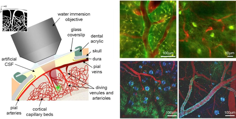 Figure 3: Microscope set-up at the skull and examples of two-photon microscopy images acquired during live imaging. Both examples show neurons (green) and vasculature (red). Bottom example uses an additional amyloid-targeting dye (blue) in an Alzheimer's disease mouse model. Image Credit:  Elizabeth Hillman . Licensed under  CC-BY-2.0 .