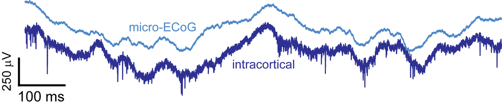 I found that many cortical neurons are phase coupled to low frequency signals at the surface of the cortex by simultaneously recording 32 signals from the surface of the brain and an additional 32 channels spanning the layers of cortex.  In this example, one signal from the surface (micro-ECoG) and one signal from within the cortex (intracortical) are shown.  The phase relationship can be seen even before filtering with the spikes tending to fall within the troughs.  I used spectral coherence to further analyze the relationship between spikes and frequency bands.