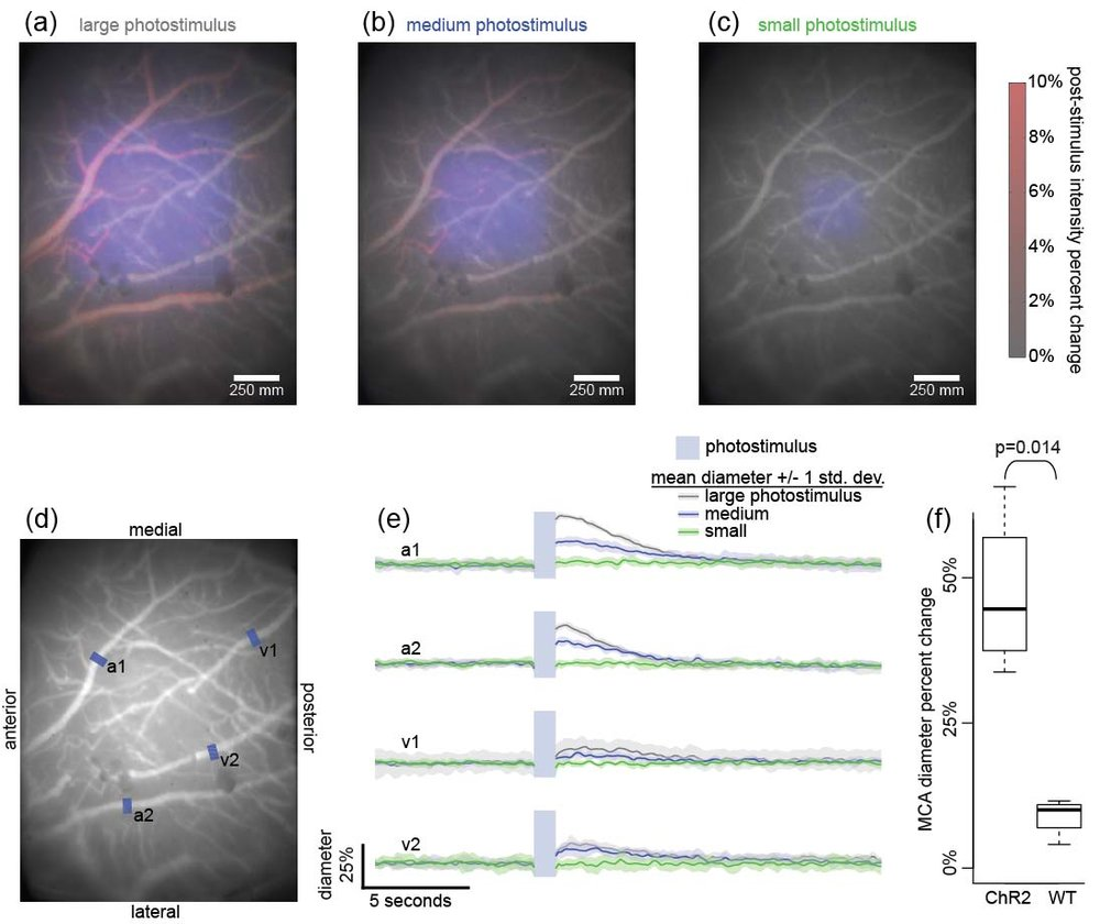 We developed a fluorescence microscope that incorporated a light projector that enabled us to apply precise patterns for optogenetic modulation of the cortex.  We applied large (a), medium (b) and small (c) photostimulus patterns while imaging the response of arteries and veins (d).  Branches of the middle cerebral artery dilated rapidly while the venous response was slower and more muted (e).  We replicated the experiment in optogenetic and wild type mice and found large significant effect (f).  Reference: Richner TJ, Baumgartner R, Brodnick SK, Azimipour M, Krugner-Higby LA, Eliceiri KW, Williams JC and Pashaie R. Patterned optogenetic modulation of neurovascular and metabolic signals. Journal of Cerebral Blood Flow and Metabolism 2014.