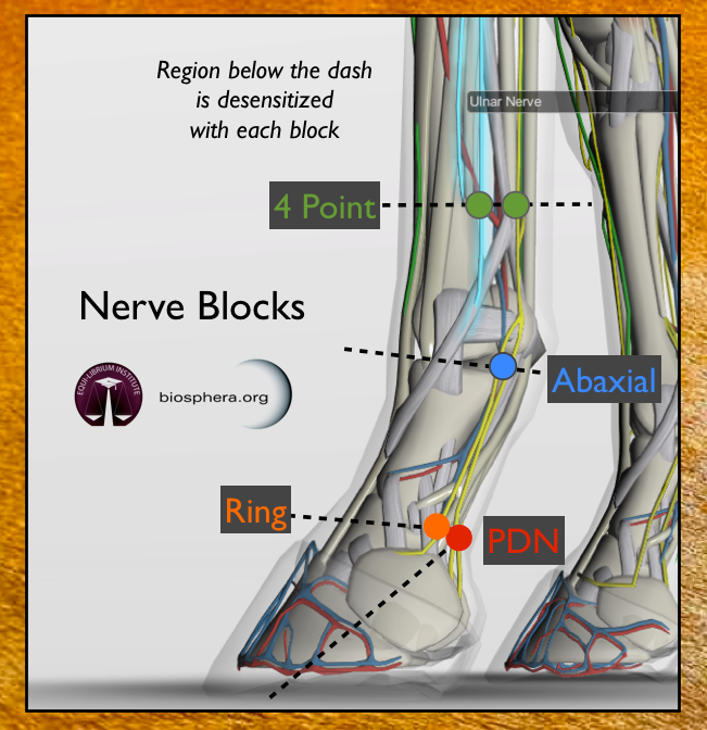 Nerve Blocks.png