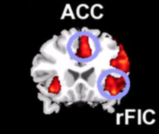 When you notice a cue to change tasks (like, say, the smell of onions burning) it generates activity in your right fronto-insular cortex (rFIC) and anterior cingulate cortex (ACC), which raises the alarm to switch over and deal with those onions. Click through for all the details from Sridharan, Levitin, and Menon.