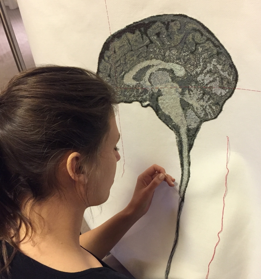 Lada Dedic adding the brain stem