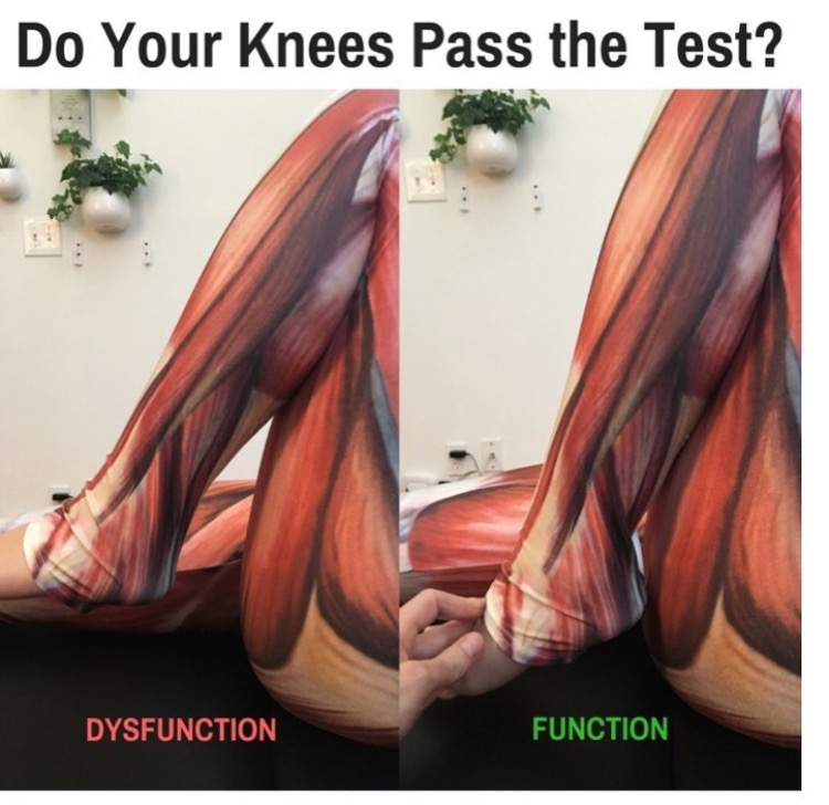 A dysfunctional knee won't flex fully; the heel of the foot doesn't touch the buttock. In a healthy joint, the heel and buttock touch with ease with without pain.